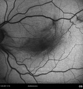 Autofluorescence photograph demonstrates distortion of retinal vessels