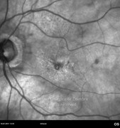 Infrared photograph 1 month after intraocular bevacizumab injection in same case