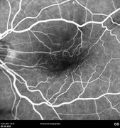 Fluorescein angiogram at early phase demonstrates distortion of retinal vessels