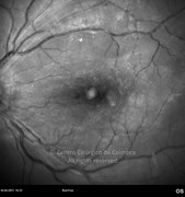 Red-free photograph, 1 month after the epiretinal membrane removal. Note that the retinal distortion disappears