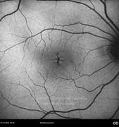 Autofluorescence of vitreomacular traction syndrome in same case. Intraretinal cystic changes caused by the vitreoretinal changes become aparent