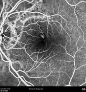 Fluorescein angiogram at early phase, 2 months after intraocular injection of bevacizumab, demonstrating  the reduction of leakage at macular area
