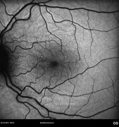 4 months after dexamethasone intravitreal implant