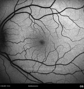 Autofluorescence photograph 2 months after retinal detachment surgery is normal