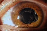 Anterior segment photograph in a 36-year-old male patient, 2 months after traumatic injury. The intraocular lenses is supported in front of the anterior capsule.Visual acuity: 20/100 LE