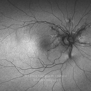 Two months after intraocular injection of intraocular bevacizumab
