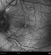 1 month after intravitreal injection of dexamethasone implant. Visual acuity: 20/60 RE