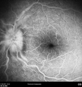 Fluorescein angiogram at mid-phase showing leakage at the optic disc