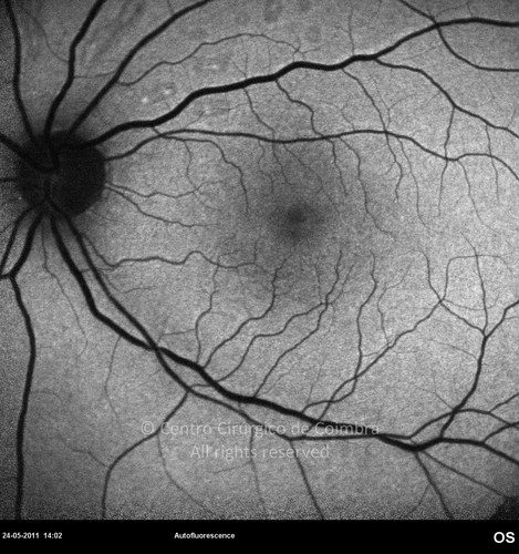 Hypotonic Maculopathy - Clinical Case 02