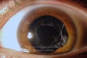 Anterior segment photograph showing the intraocular lenses supported in front of the anterior capsule