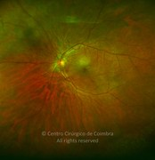 Ultra-widefield photograph (magnification) 3 months after dexamethasone intravitreal implant