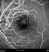 Fluorescein angiogram at early-phase showing hyperfluorescent window defects corresponding to angioid streaks and active choroidal neovascular membrane