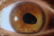Anterior segment photograph, 5 months after surgery. Visual acuity: 20/20 LE