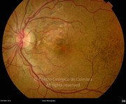Fundus photograph of angioid streaks e choroidal neovascular membrane. The eye was injected with intraocular bevacizumab