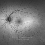 5 months after surgery. Visual acuity: 20/20 LE