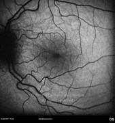 3 months after intravitreal injection of dexamethasone implant