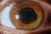 Anterior segment photograph, 1 day after epiretinal membrane removal
