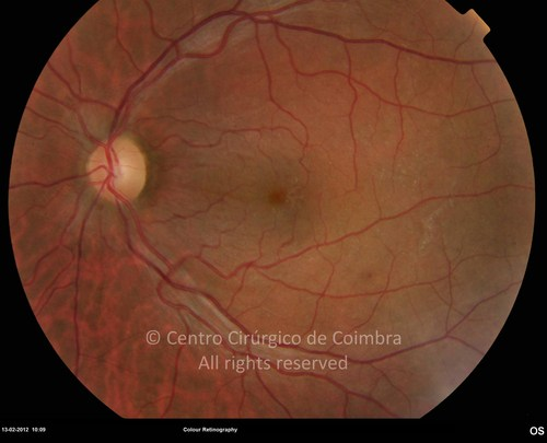 Hypotonic Maculopathy - Clinical Case 01
