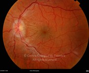 Fundus photograph of hypotonic eye, 2 months after traumatic injury. Note the chorioretinal folds in the posterior pole, papilloedema and vascular tortuosity. Visual acuity: 20/100 LE