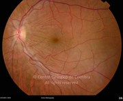 Fundus photograph, 4 months after dexamethasone intravitreal implant showing less retinal folding