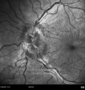 Red-free photograph of the optic disc showing papilledema