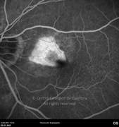 Fluorescein angiogram at mid-phase showing macular leakage from neovascular membrane