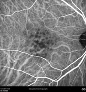 Indocyanine green angiography is important to reveal one probable choroidal neovascular membrane that is not visualized with fluorescein angiography. There is no notch or leakage to suggest CNV