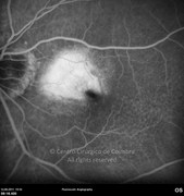 Fluorescein angiogram at late phase showing macular leakage from neovascular membrane