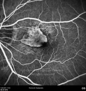 Fluorescein angiogram at early phase showing macular leakage from neovascular membrane