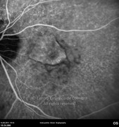 Indocyanine green angiogram demonstrating the choroidal neovascular membrane