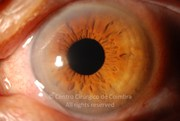 Anterior segment photograph of left eye 1 day after cataract surgery. Visual acuity: 20/200 RE; 20/132 LE one week after cataract surgery