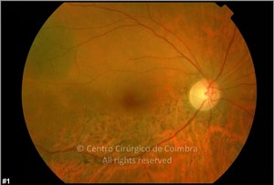 Commotio Retinae