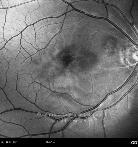 Purtscher Retinopathy - Clinical Case 01