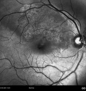 Red-free photograph at macular area 5 months after surgery showing evidence of macular changes