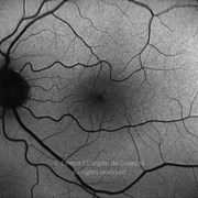 Six years after macular hole surgery. BCVA: 20/15 LE