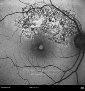 Autofluorescence photograph of traumatic macular hole showing hiper-reflective macula and chorioretinal scars