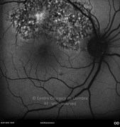 Autofluorescence photograph 1 week after macular hole surgery showing macular recovery and adjacent area of choriorretinite