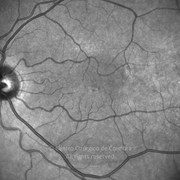 Four years after macular hole surgery.VA: 20/25 LE