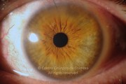 1 day after epiretinal membrane removal and cataract surgery
