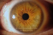 1 week after epiretinal membrane removal and cataract surgery. VA: 20/28 LE