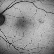 Two years after epiretinal membrane removal