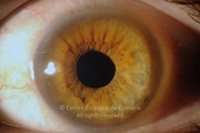 Anterior segment photograph, 2 months after surgery. Visual acuity: 20/22 LE