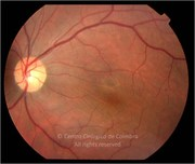 Fundus photograph, 10 years after surgery
