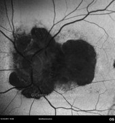 Fundus autofluorescence 13 years after surgery showing an extensive area of hypoautofluorescence, in the region of chorioretinal atrophy
