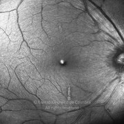 One week after cataract surgery, vitrectomy and epiretinal membrane surgery. VA: 20/20 RE