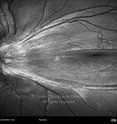 2 weeks after posterior vitrectomy and removal of vitreoretinal tractions