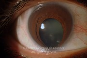 Iris coloboma (bilateral),