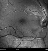 Red-free photograph of a juvenile X-linked retinoschisis in a 17-years-old male patient. Visual acuity: 20/200 RE