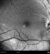 Fundus photograph (red-free) showing areas of central and peripheral retinoschisis