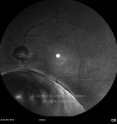 2 years after surgery. Visual acuity: 20/20 RE; 20/22 LE